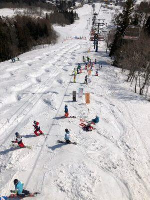戸狩温泉スキー場のモーグルバーン
